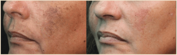 enlighten laser and pico genesis laser treatment for brown spots Miami Skin Spa