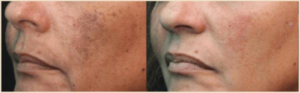 enlighten laser and pico genesis laser treatment for brown spots Miami Skin Spa