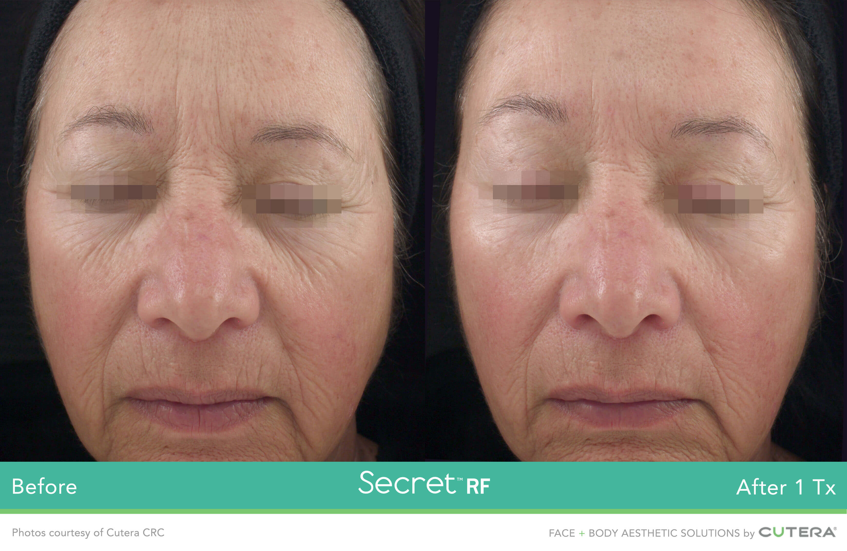 Skin resurfacing before and after on the face using the Secret RF MicroNeedling device.
