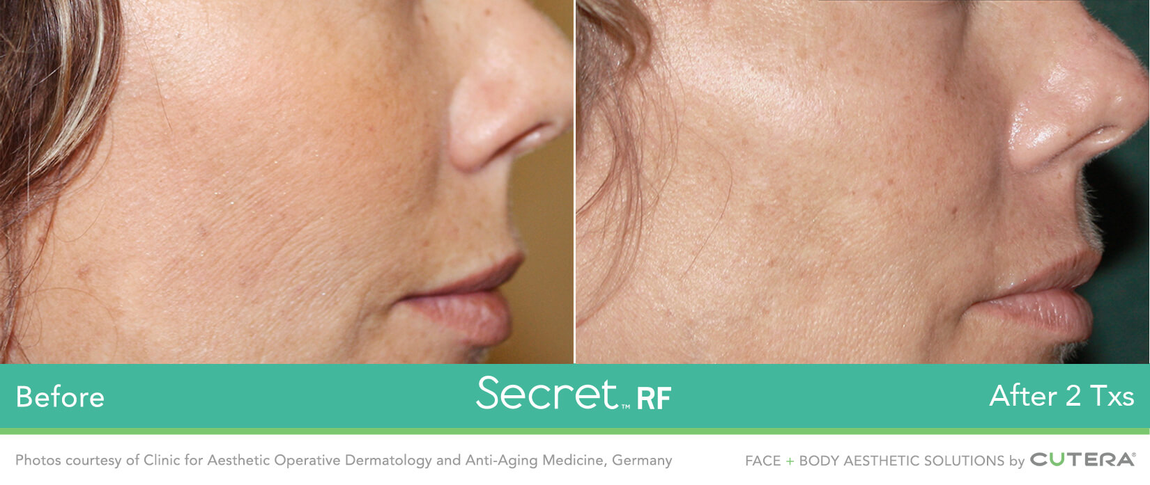 Fine line removal cheeks miami skin spa