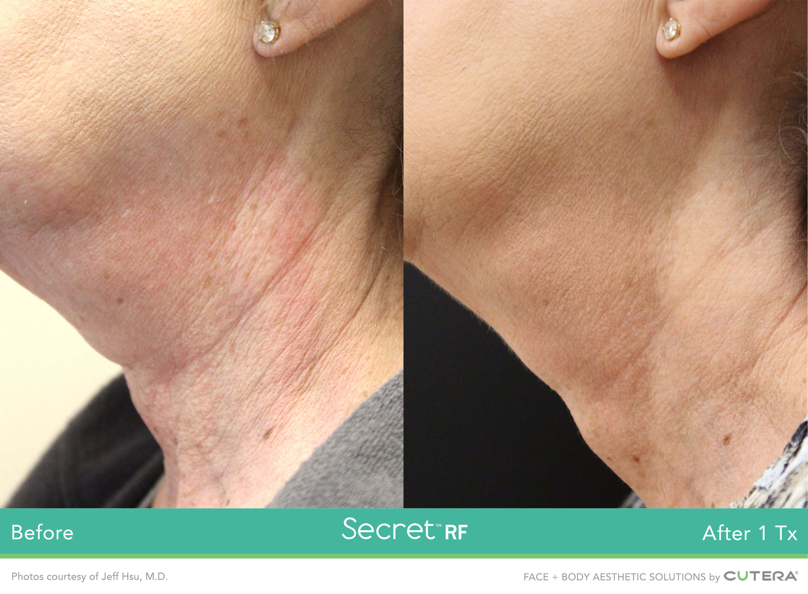 Before and after image of neck Skin Tightening after 1 treatment session - Miami Skin Spa