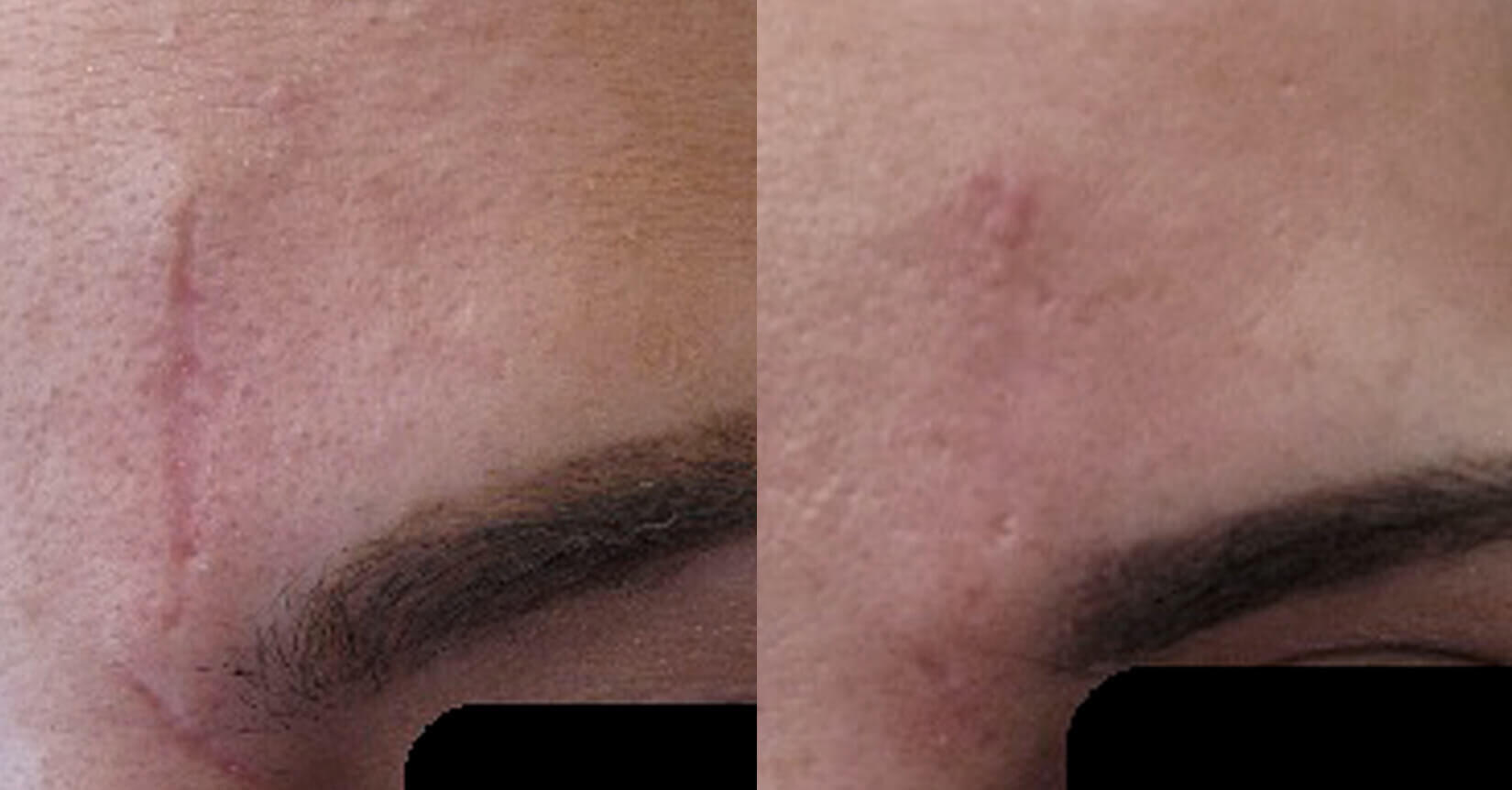 Before and after image of scar removal treatment after 1 treatment session - Miami Skin Spa
