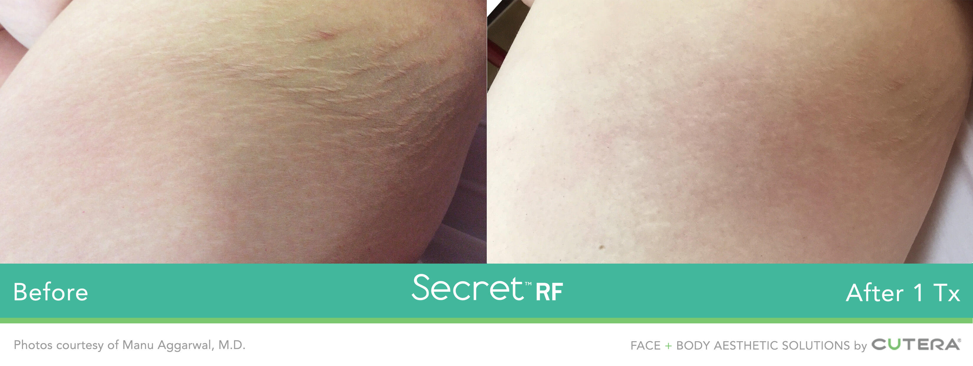 Before and after image of buttocks stretch mark removal after 1 treatment session with Secret RF - Miami Skin Spa