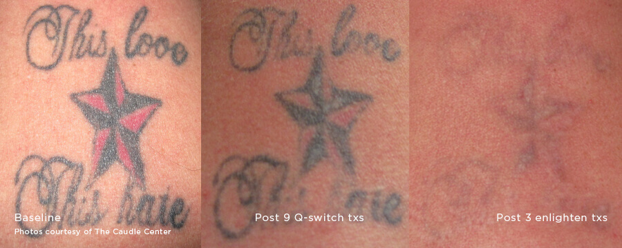 Before and after image of color tattoo laser tattoo removal of a start and lettering after 1 and 3 treatment sessions with Enlighten III Laser - Miami Skin Spa