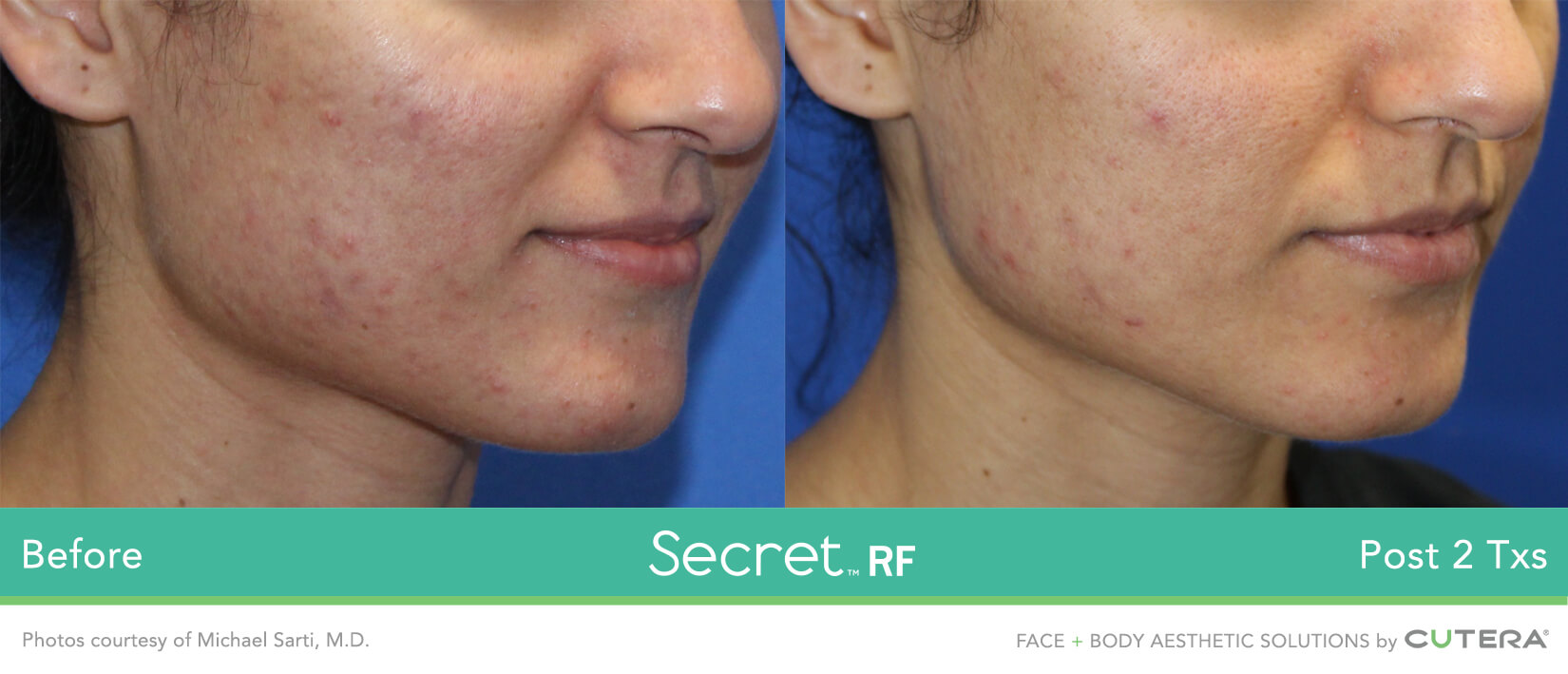 Secret RF Microneedling Before and After of Female Acne Scar Removal Treatment Miami Skin Spa