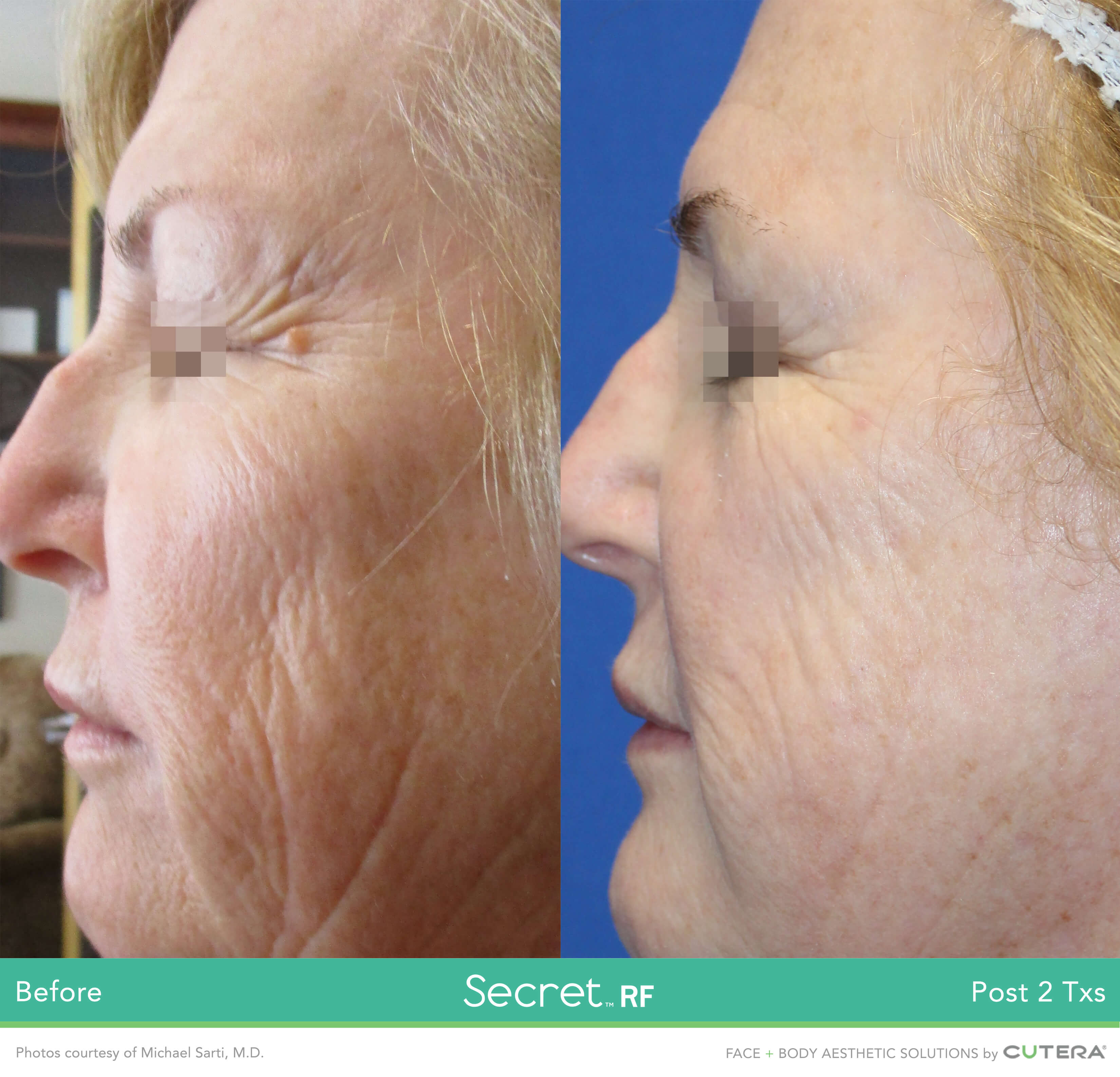 Skin resurfacing treatment Before and After of wrinkles on the cheeks being removed in 2 sessions.