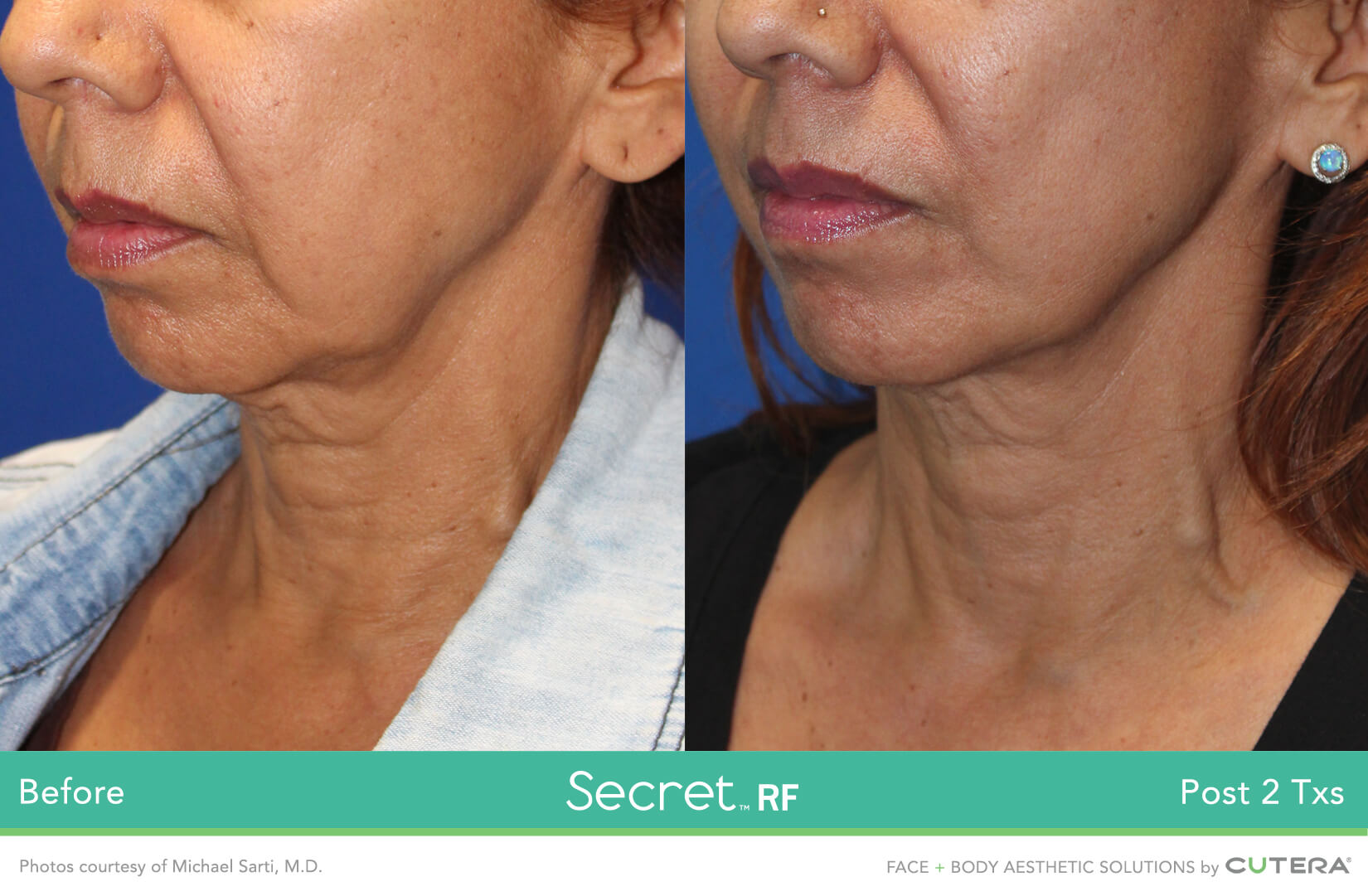 Before and After of a skin resurfacing treatment on the cheeks, chin and necks using the Secret RF Device after 2 treatments.