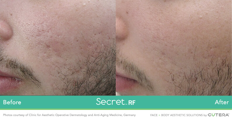 Before and after image of acne scar removal treatment after 1 treatment session with Secret RF- Miami Skin Spa