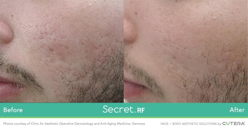 Secret_B&A_male acne scarring