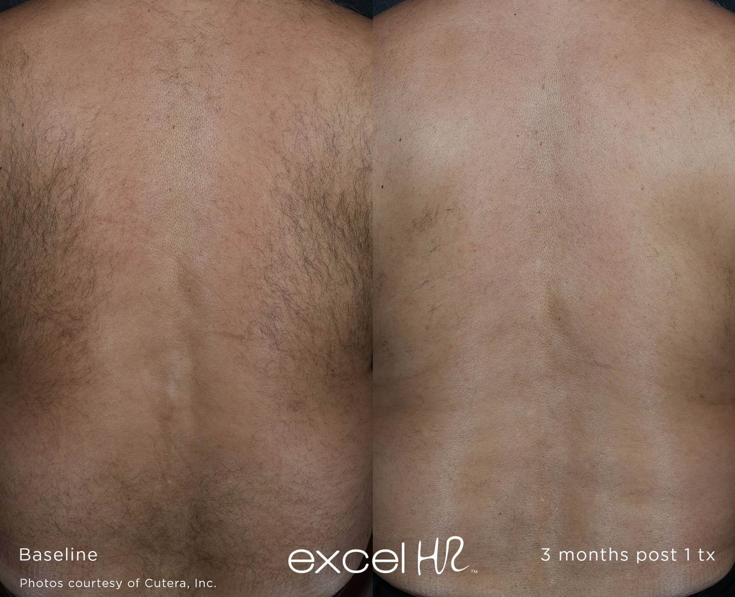 Before and after image of back laser hair removal hair growth 3 months after 1 treatment sessions with Excel HR laser - Miami Skin Spa