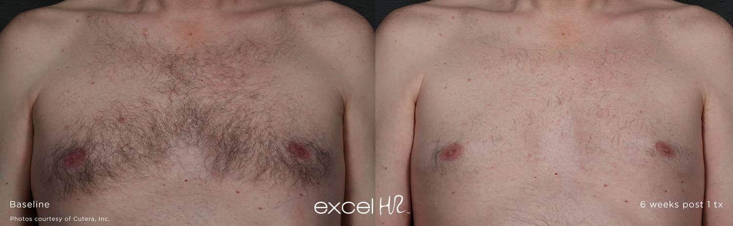Before and after image of chest laser hair removal hair growth 6 weeks after 1 treatment sessions with Excel HR laser - Miami Skin Spa