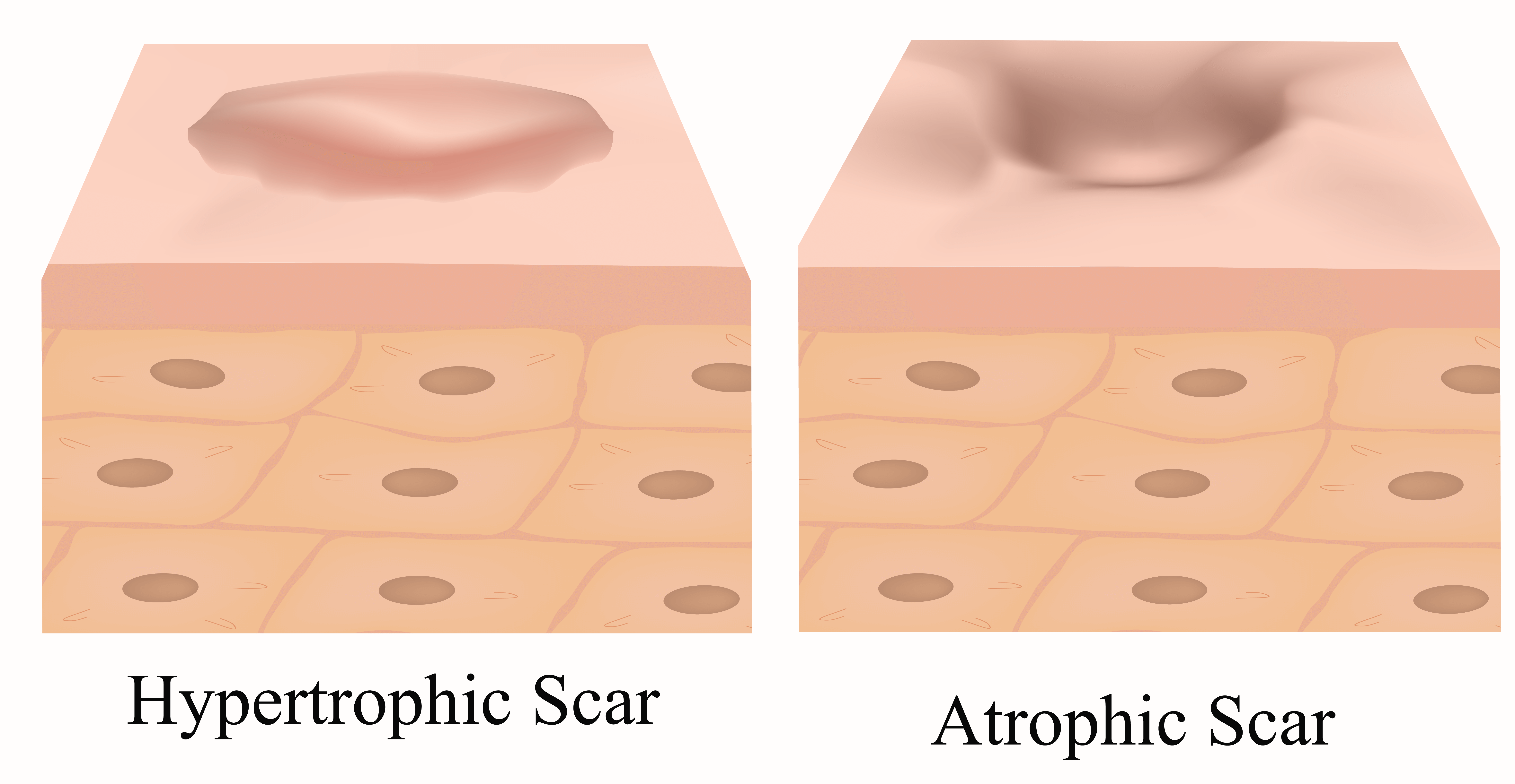 Type of Acne Scars - Hypertrophic Scar and Atrophic Scar