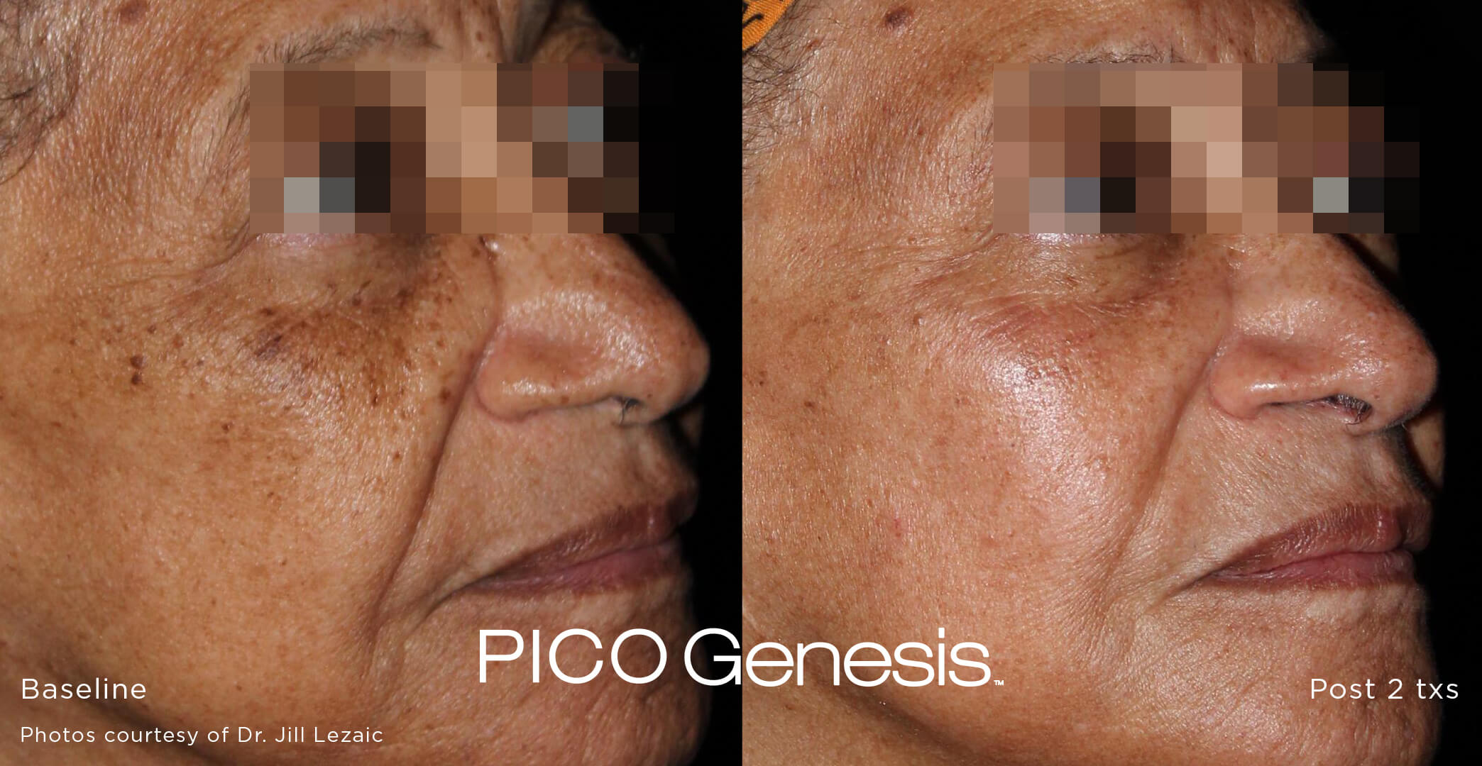 Before and after image of the pico genesis laser age spot removal treatment and brown spot removal treatment after 2 treatment sessions