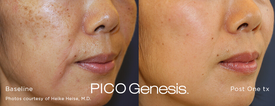 Before and after image of the enlighten pico genesis laser age spot removal treatment and brown spot removal treatment after 1 treatment