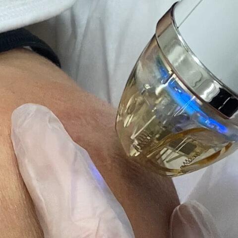Secret RF Microneedling for Scar Removal Treatment Miami Skin Spa