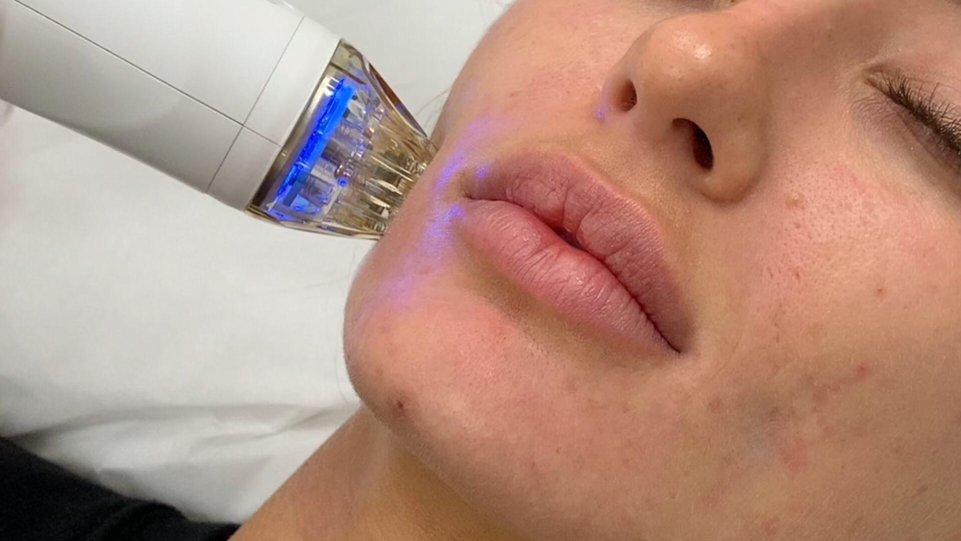 Secret RF Microneedling for Acne Scar Removal Treatment Miami Skin Spa