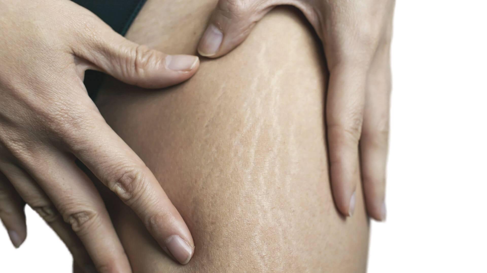 Stretch marks removal miami skin spa