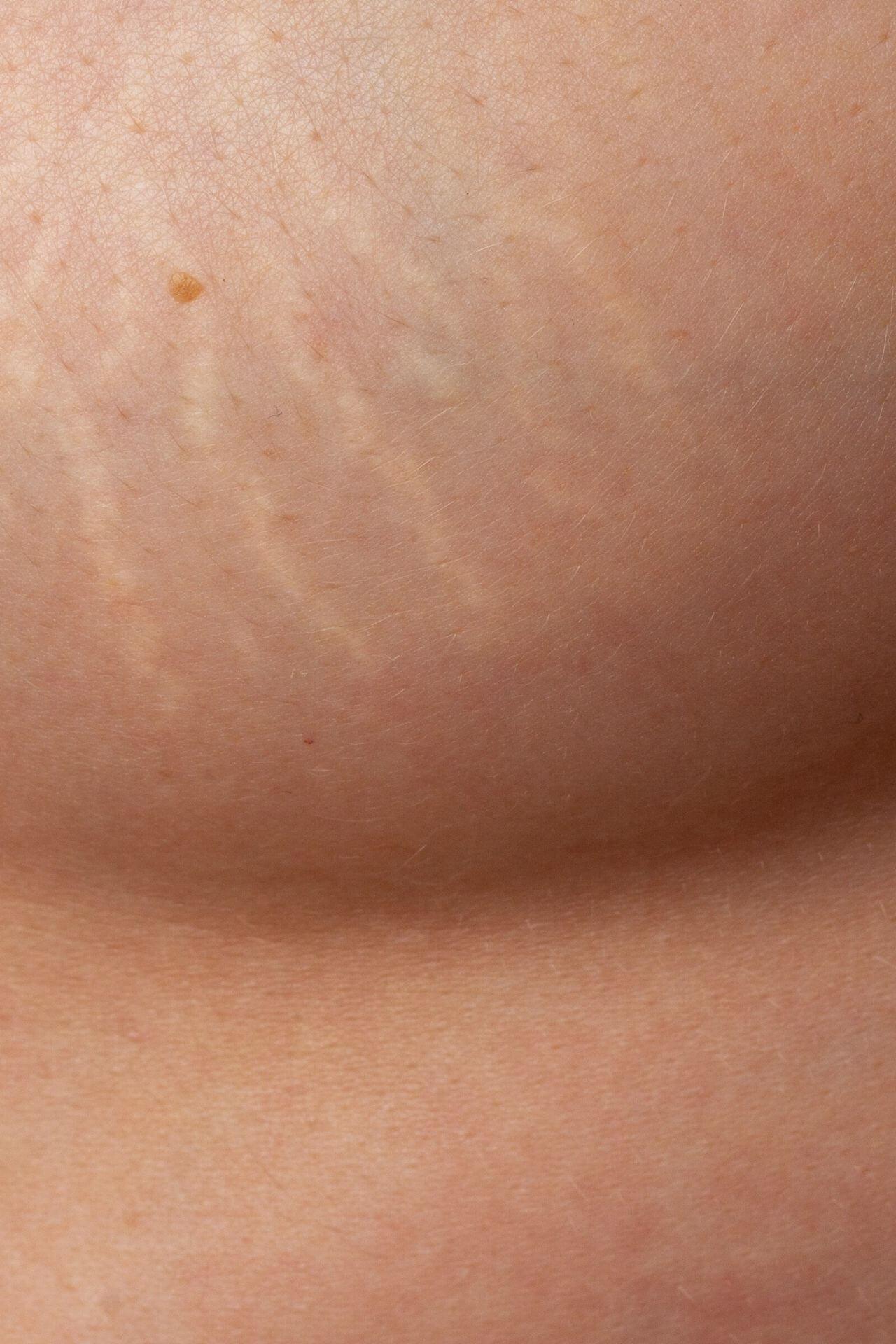 breast scar removal miami skin spa