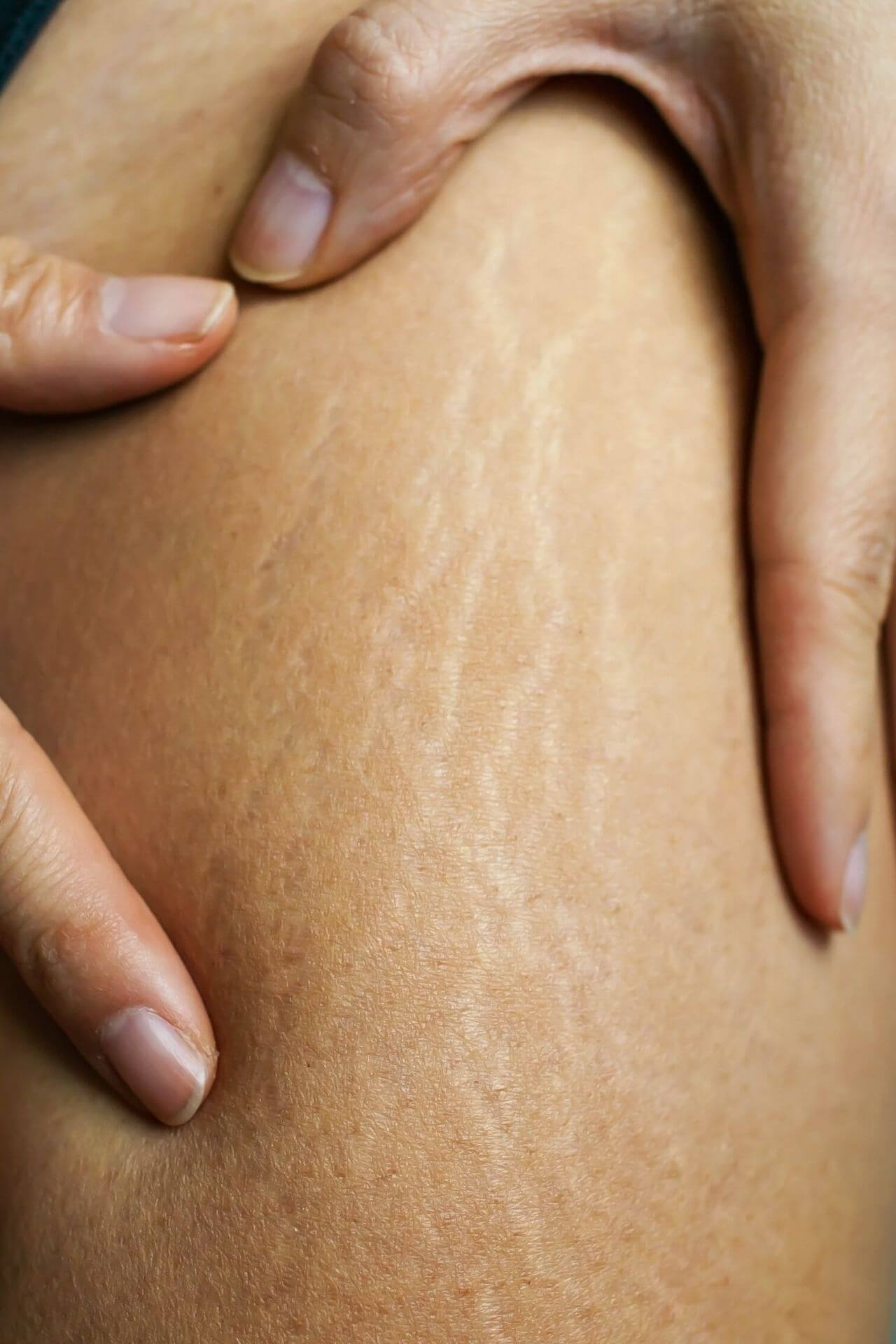 leg stretch mark removal miami skin spa
