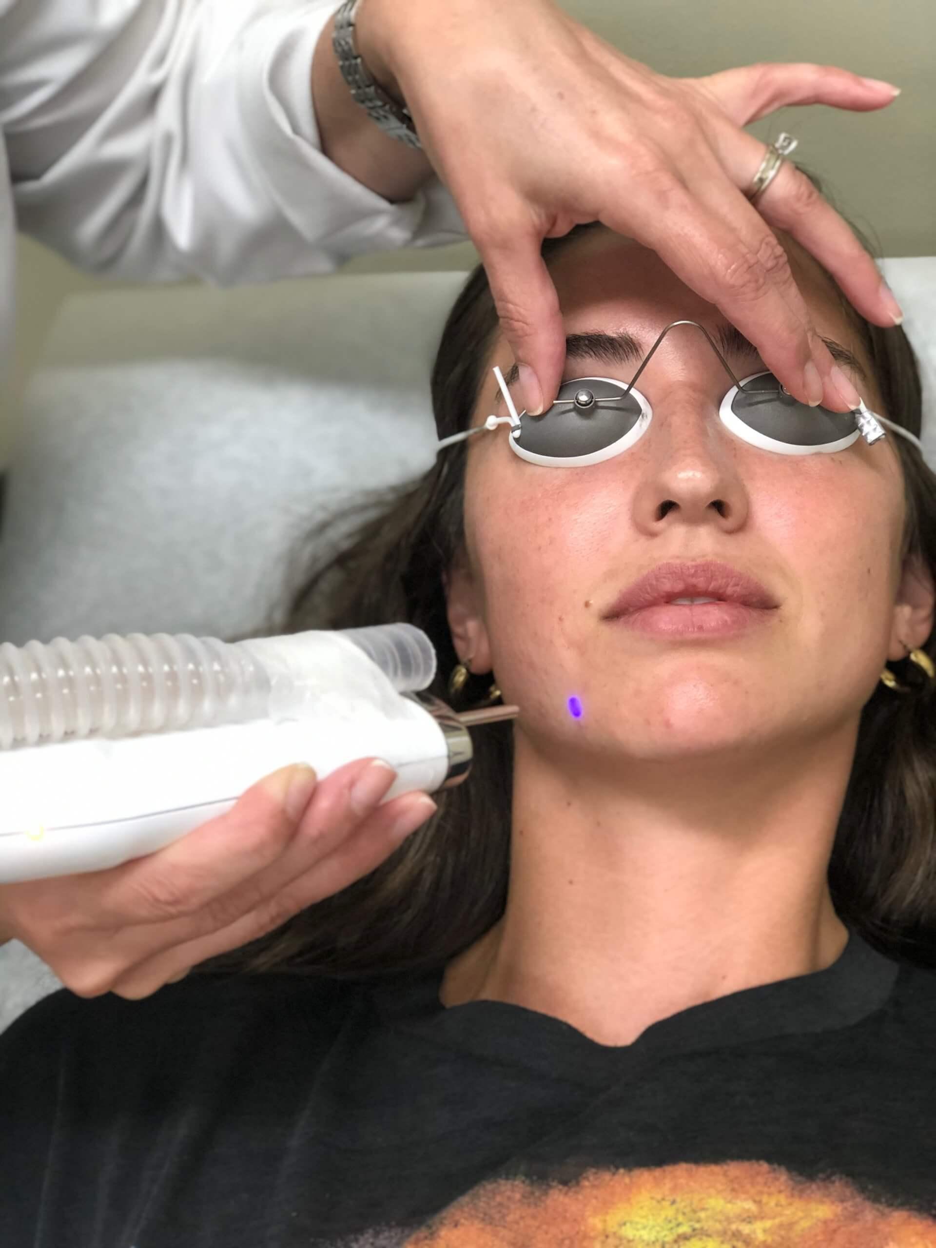 Skin Resurfacing with Enlighten III Laser
