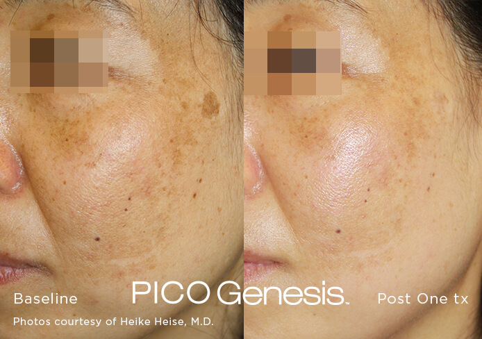 Before and after image of the pico genesis laser age spot removal treatment and brown spot removal treatment after 1 treatment session
