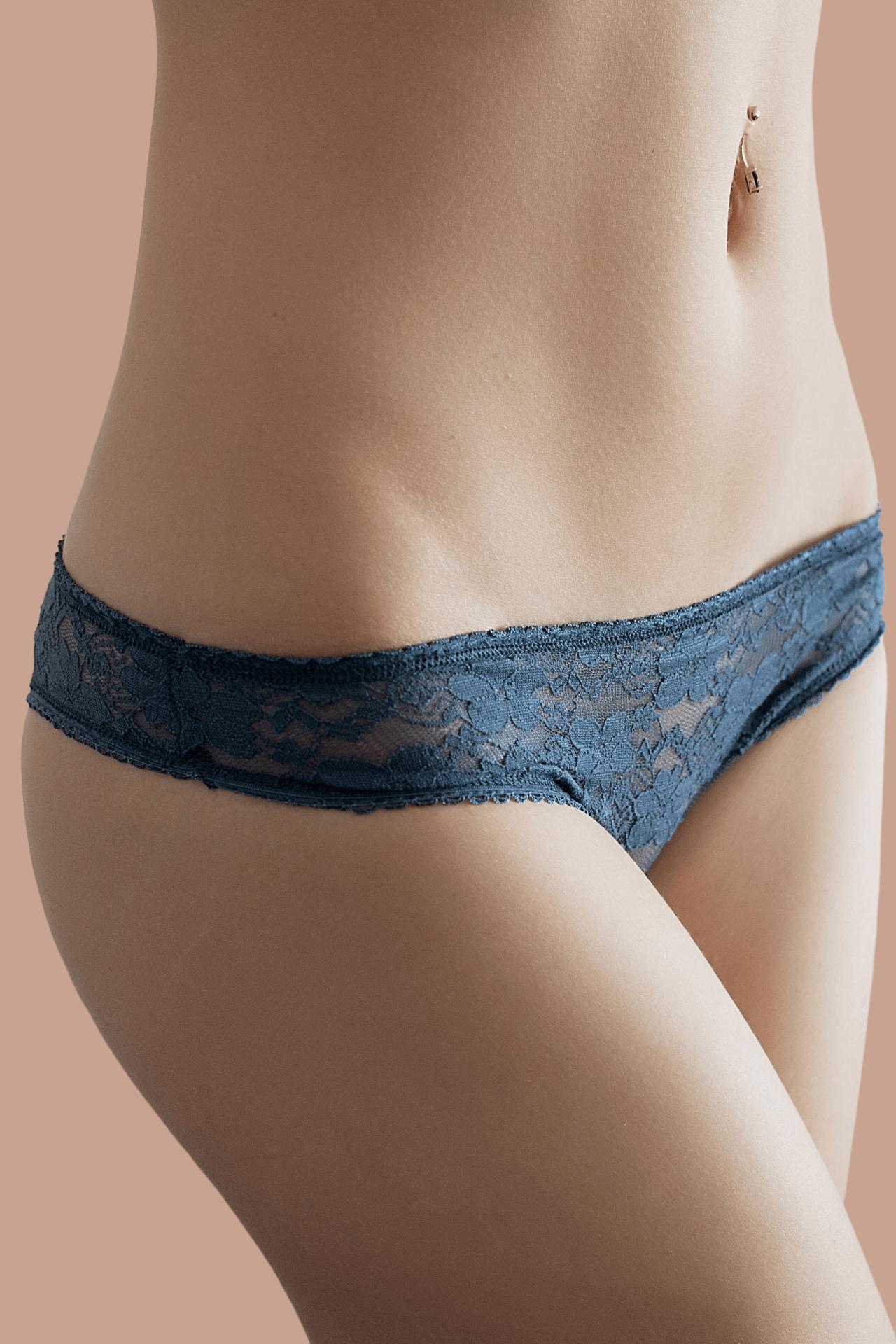 A womans abdomen after a truSculpt iD Body contouring treatment