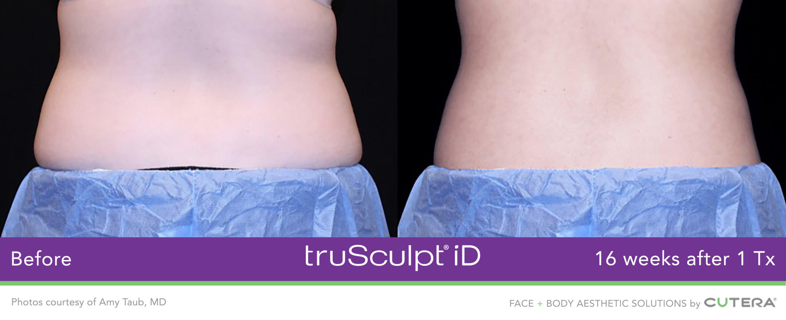 Before and After of the truSculpt iD treatment on a womans back