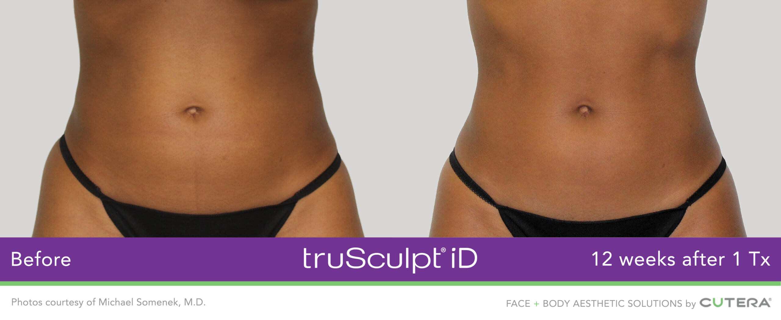 Body Sculpting before an after on the abdomen and obliques with truSculpt iD