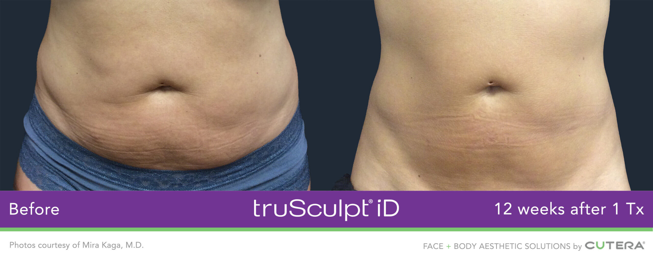 Before and After of the truSculpt iD treatment on a womans belly