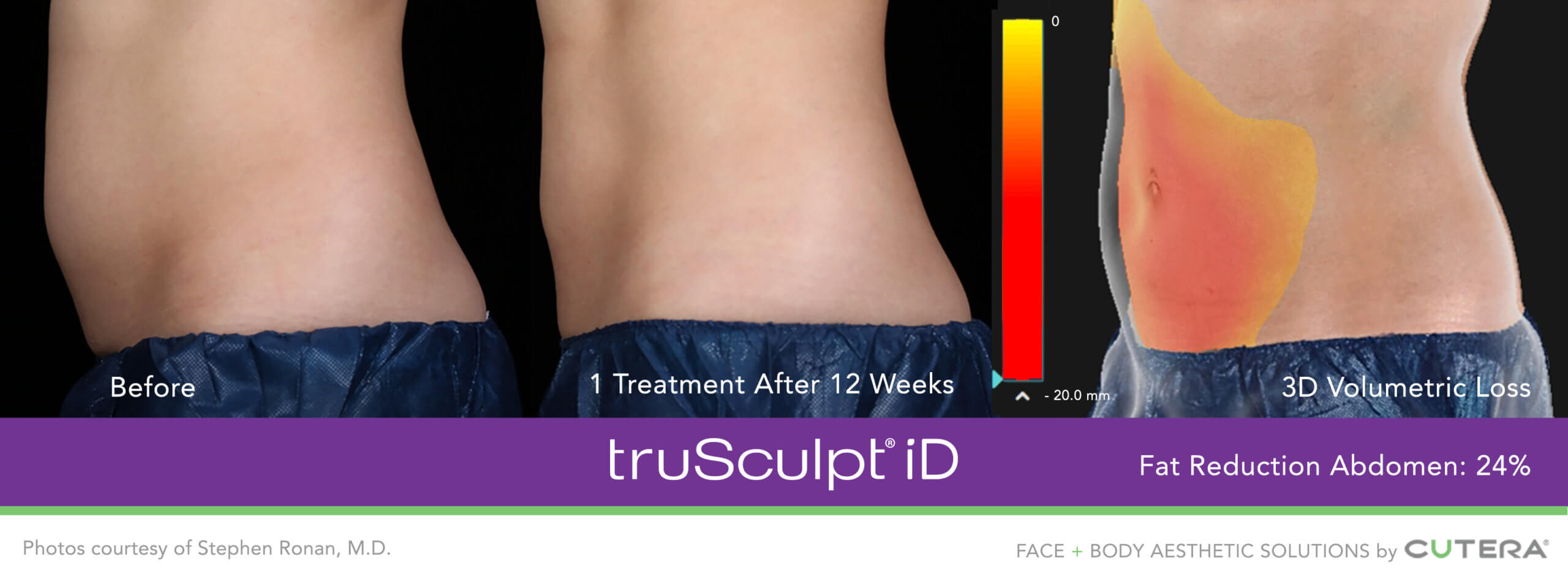 Before and After of the truSculpt iD treatment with a 3D photo showing the reduction in weight