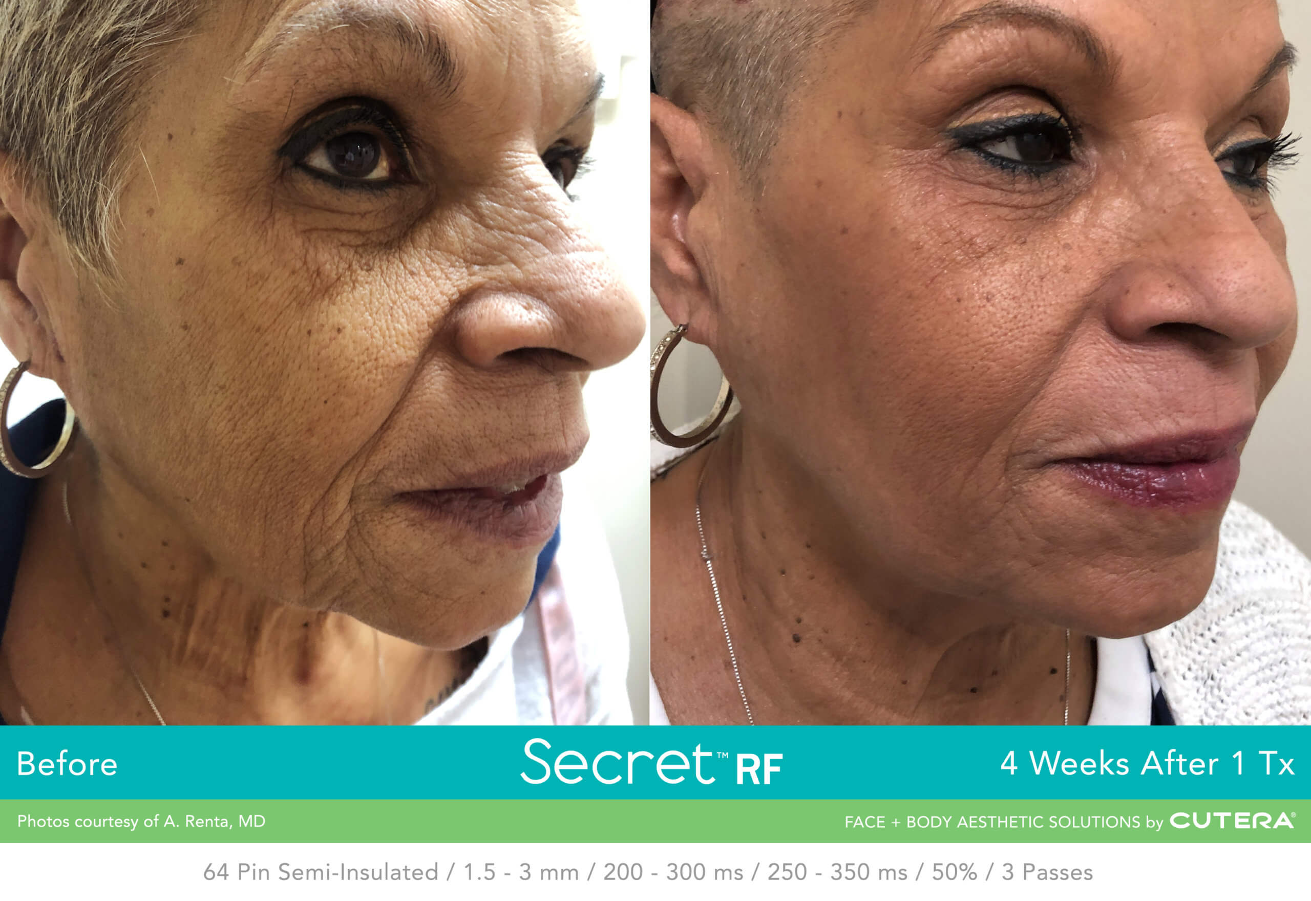 Before and after image of face Skin Tightening after 1 treatment session - Miami Skin Spa