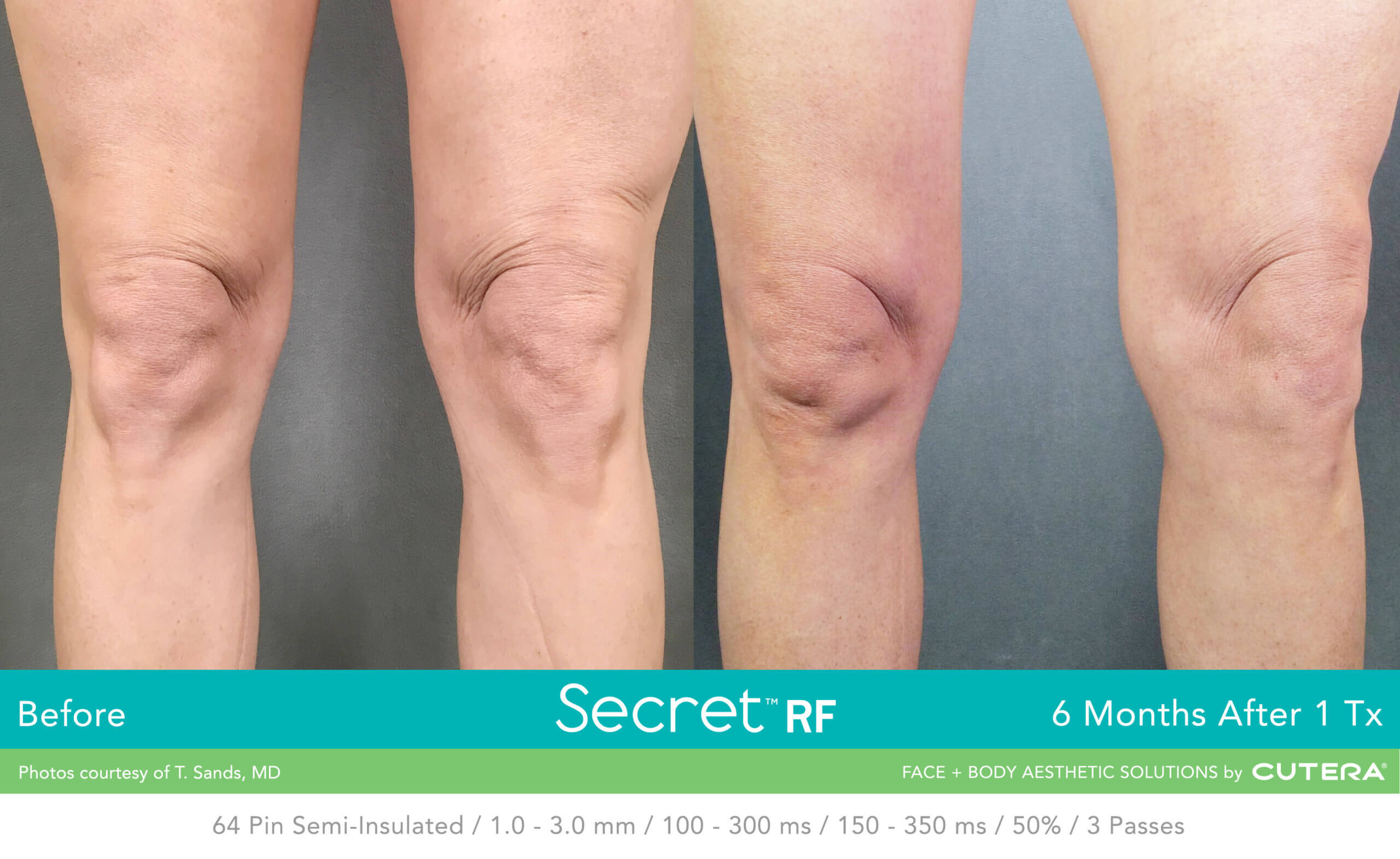 Before and after image of knees Skin Tightening after 1 treatment session - Miami Skin Spa