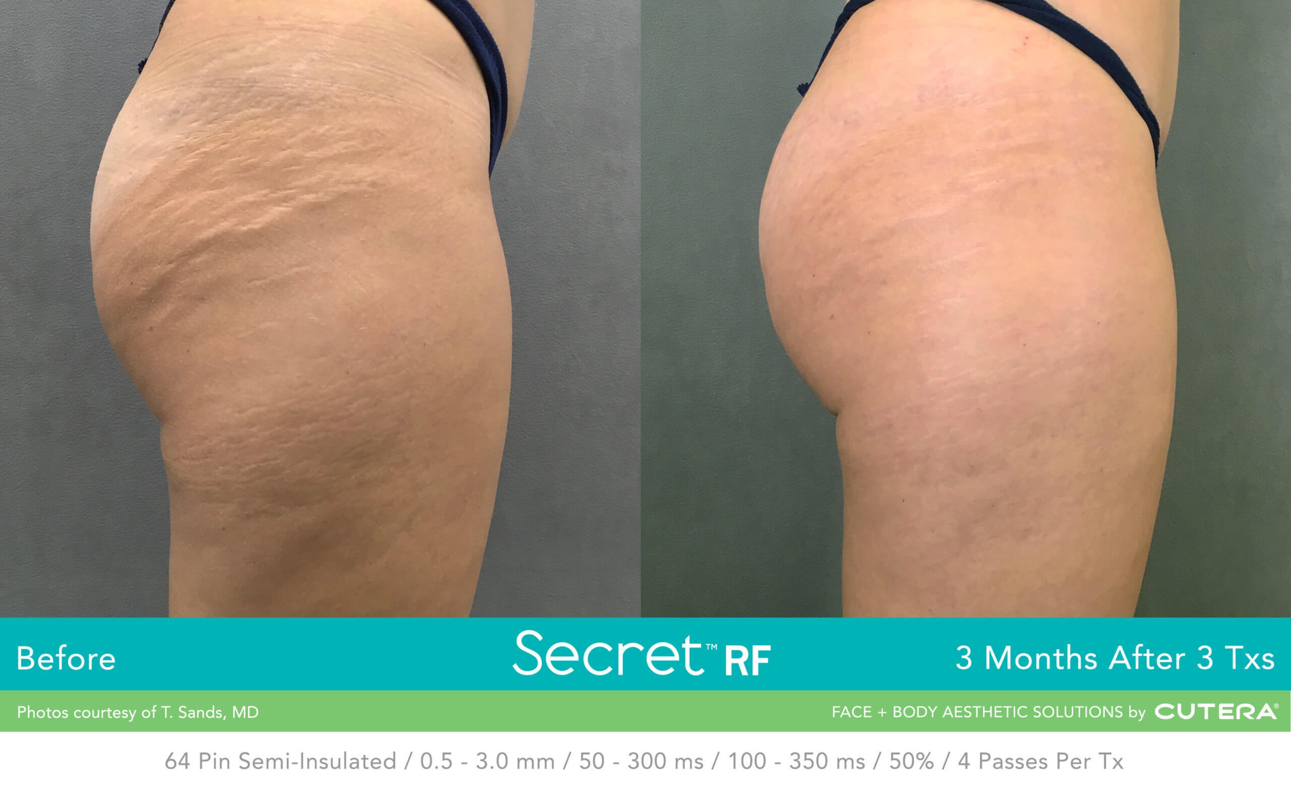 Before and after image of buttocks stretch mark removal after 3 treatment sessions with Secret RF - Miami Skin Spa