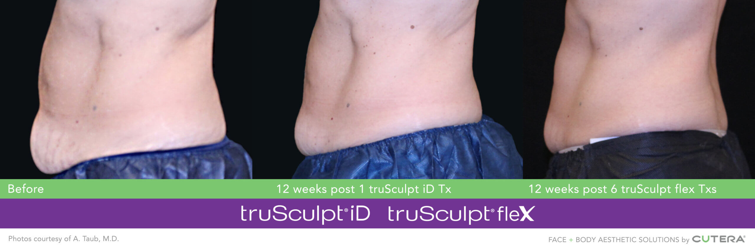 Muscle Sculpting and Body Sculpting on the abdomen and flanks before and after image after 12 weeks