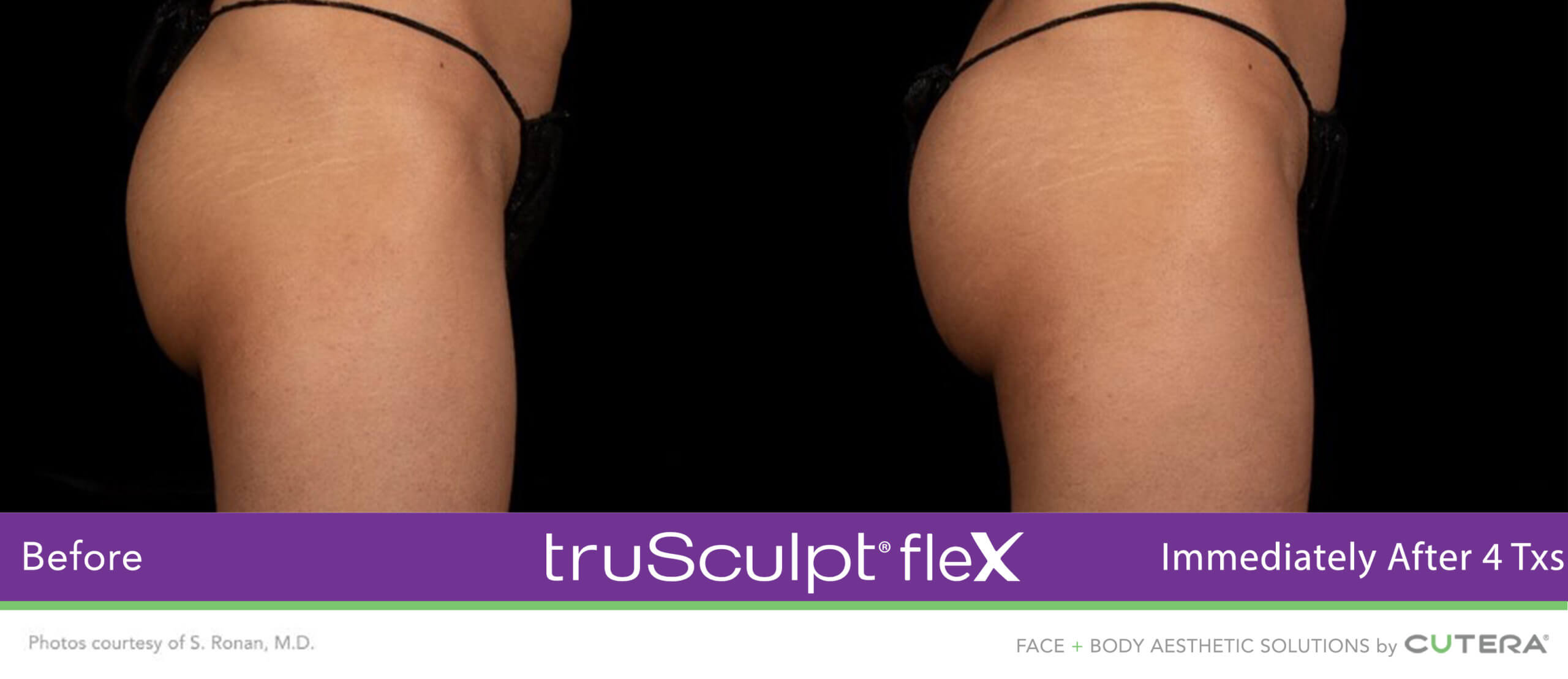 Muscle Sculpting Before and After on the glutes using truSculpt fleX