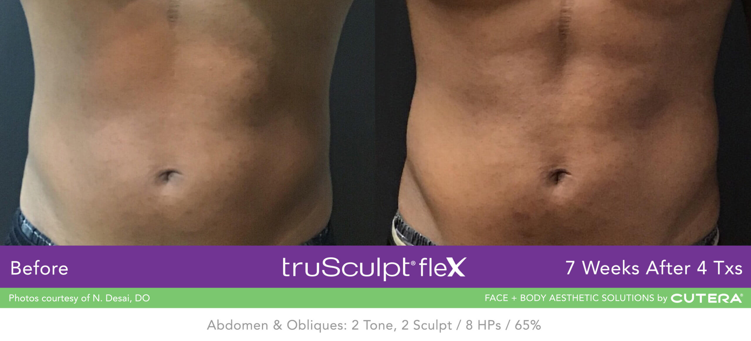 Muscle Sculpting on the abdomen before and after using the truSculpt fleX