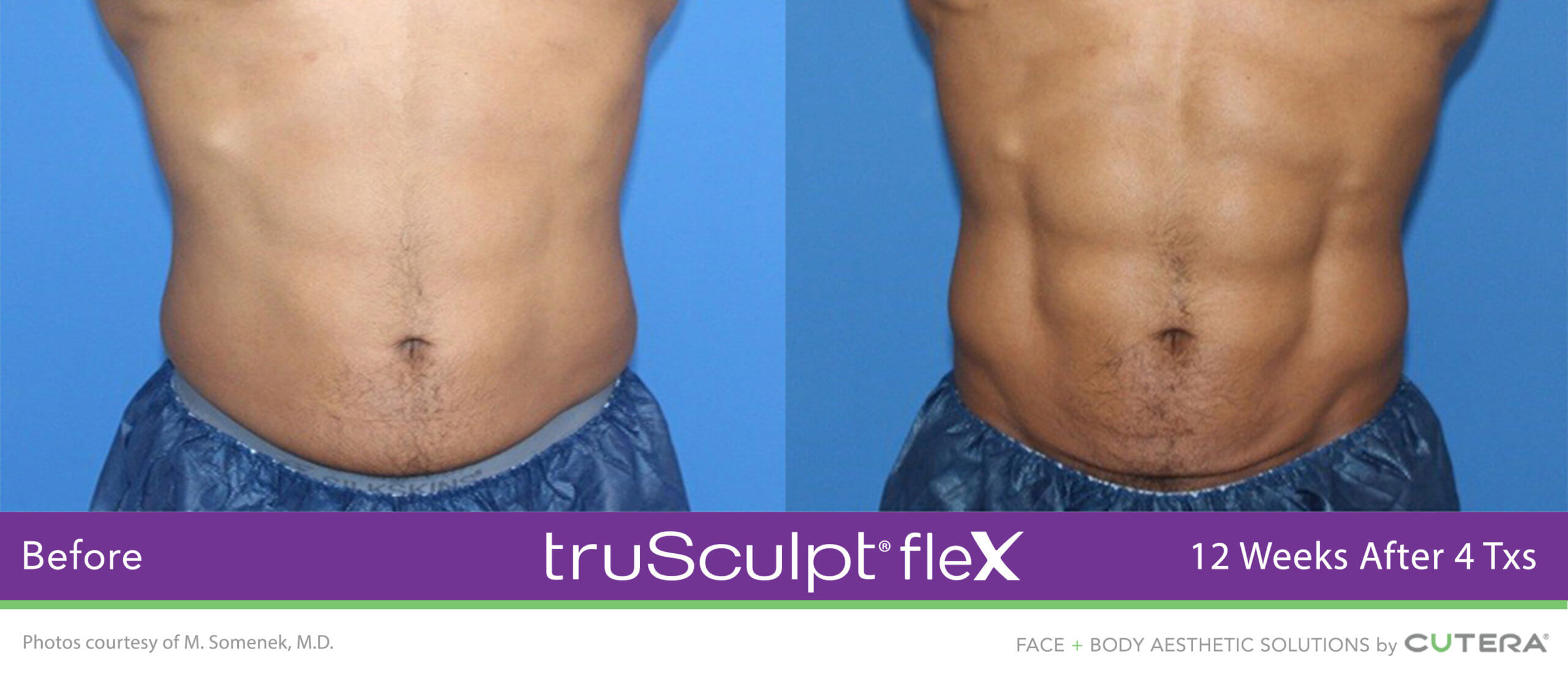 Muscle sculpting before and after on the abdomen and flanks using the truSculpt fleX