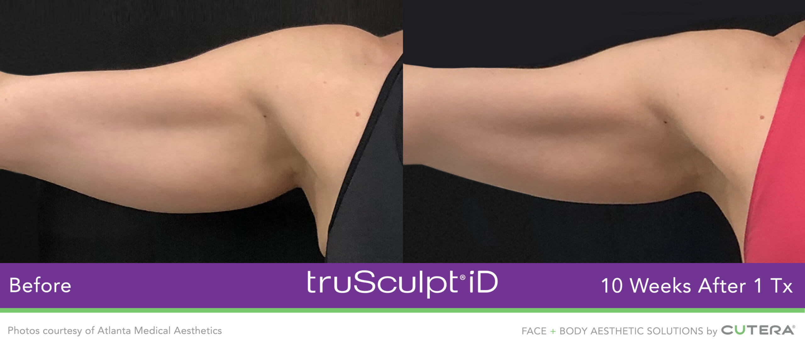 Body sculpting before and after using the truSculpt iD