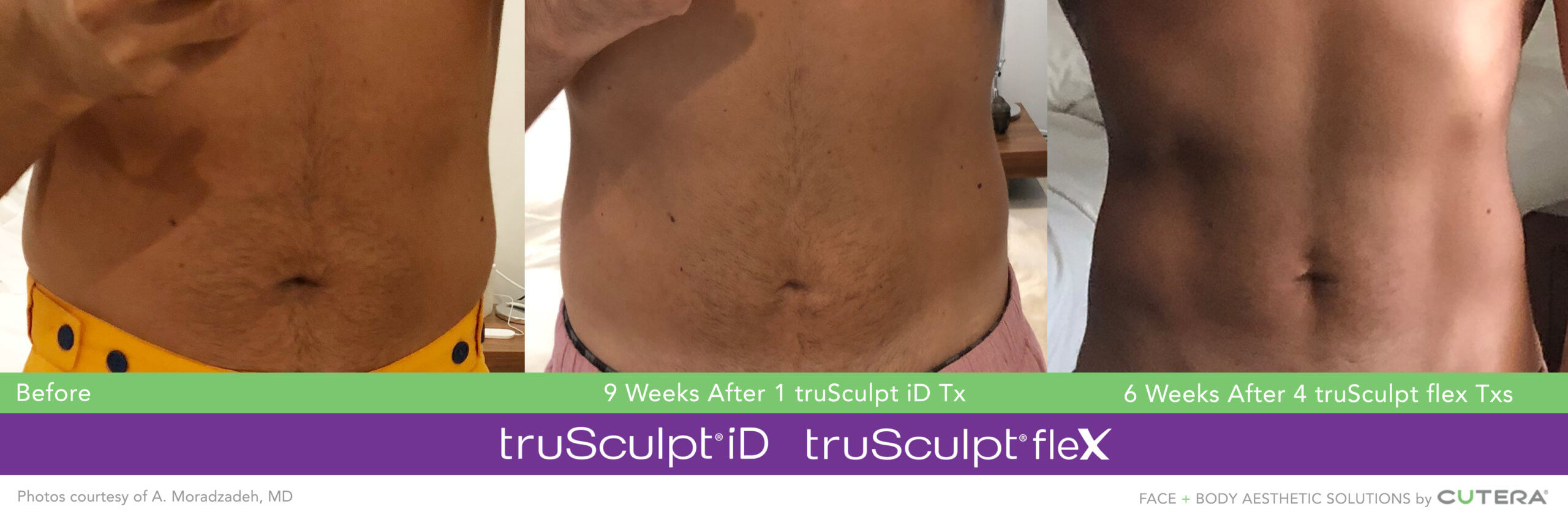 Muscle Sculpting and Body Sculpting on the Abdomen and Obliques/Flanks Before and After image after 12 weeks