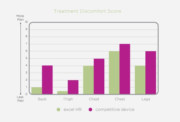 A treatment discomfort graph showing the excel laser hair removal device vs its competitors