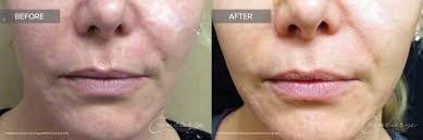 Laser Genesis before and after on the face