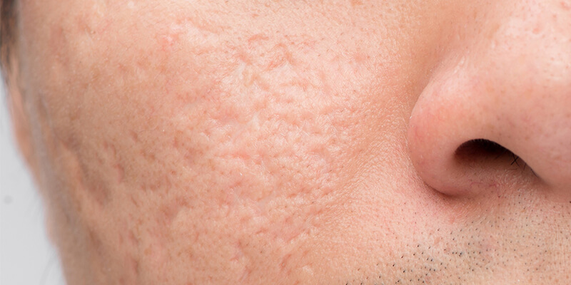 A man with ice pick acne scars on his cheeks