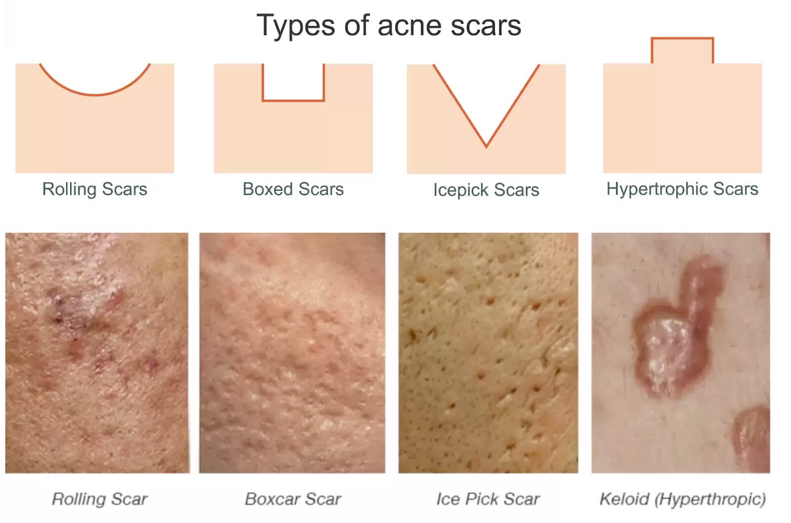 A graphic showing the difference between the 4 major types of acne scarring both in diagram form and on someones face and cheeks