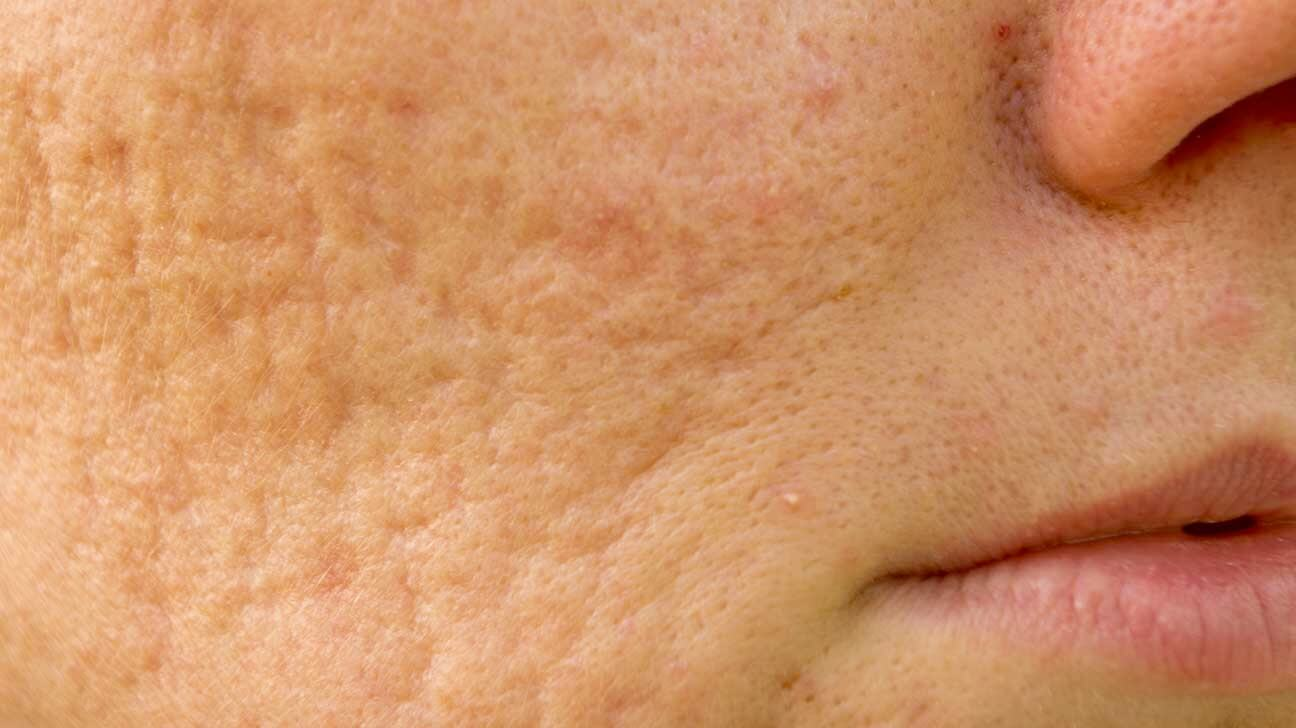 A woman with Boxcar scars on her cheeks