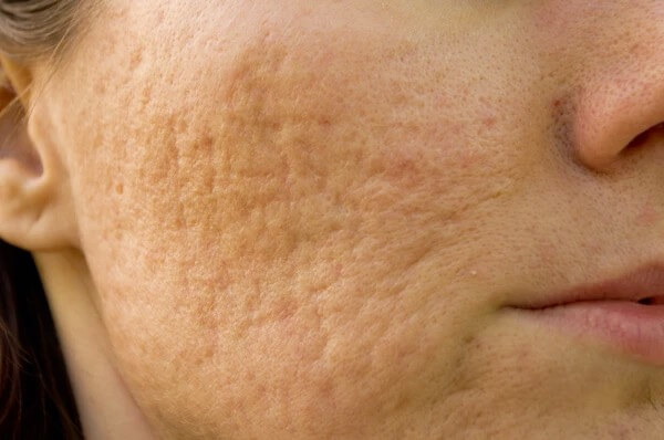 A woman who has rolling acne scars on her cheeks