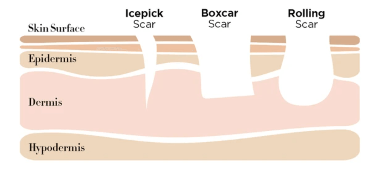 A graphic illustrating how the three types of atrophic scarring form