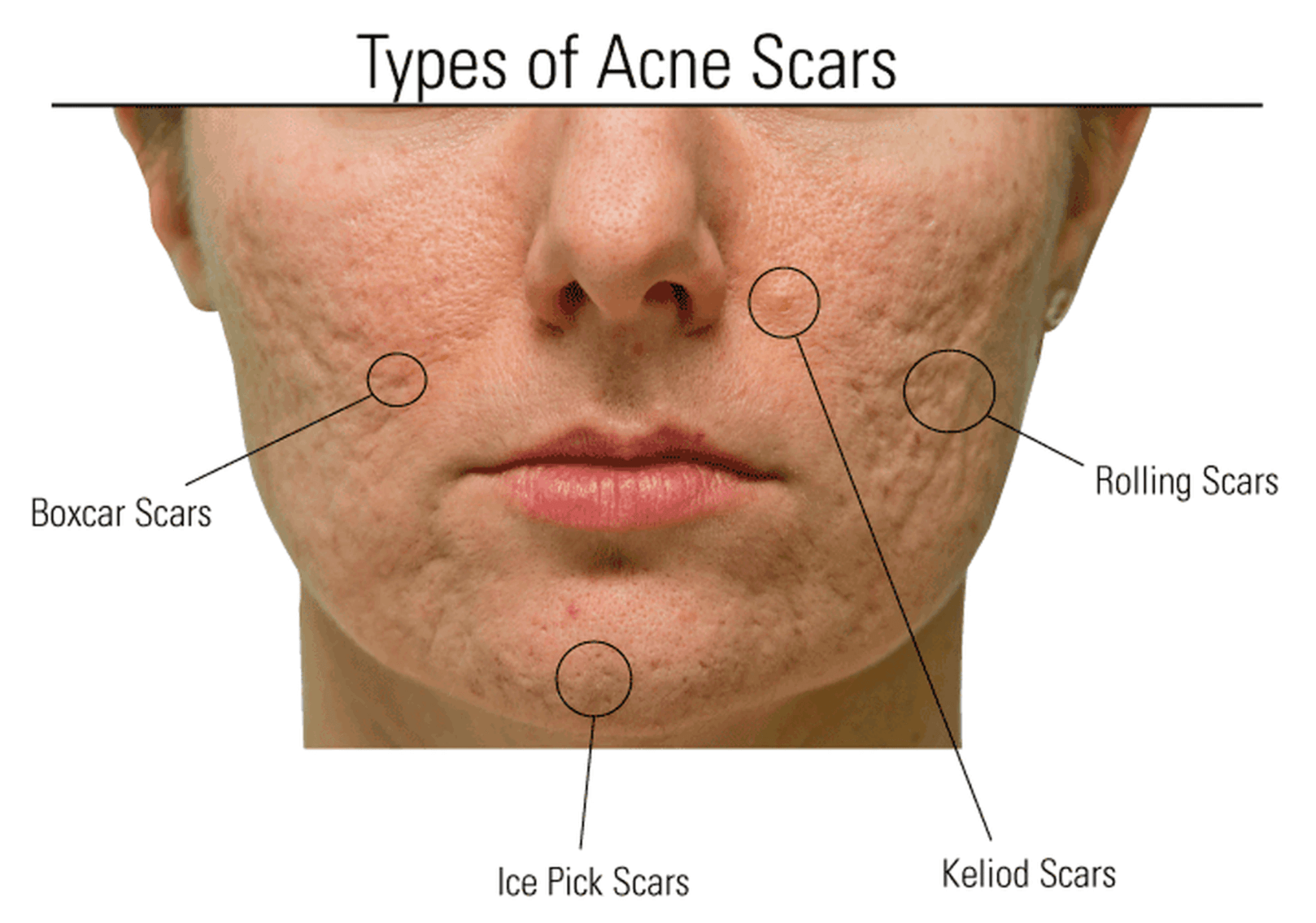 A person with all 4 types of acne scars on their face
