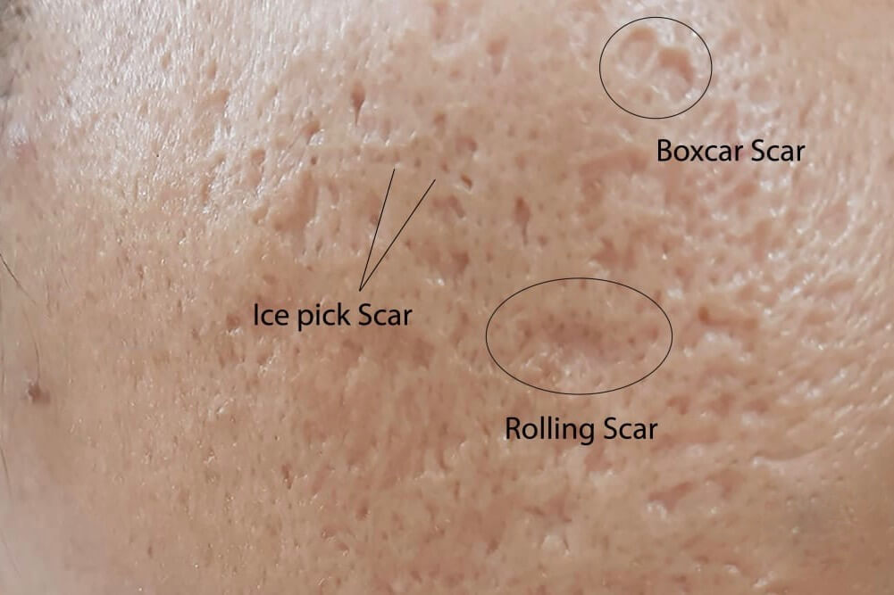 a person with teh three types of atrophic scarring on their cheek