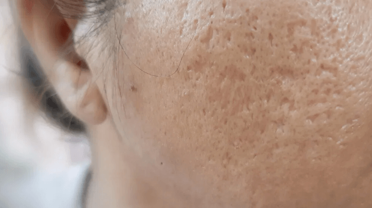 A womans face with apparent boxcar acne scars on her cheek and face