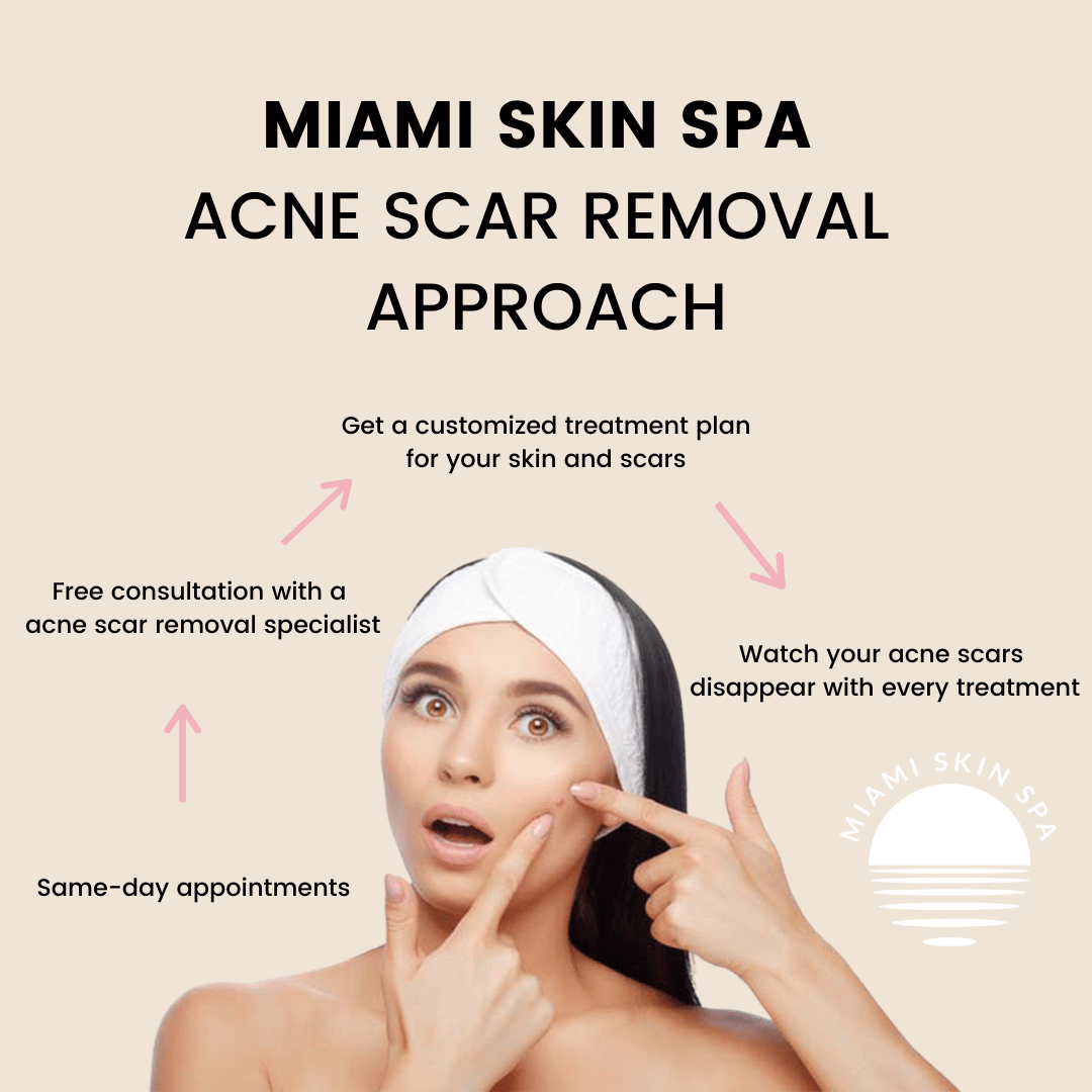 A diagram of the approach that Miami Skin Spa uses for removing acne scars and acne scarring. When it comes to hypertrophic acne scars, keloid acne scars, atrophic acne scars, boxcar acne scars, ice pick acne scars.